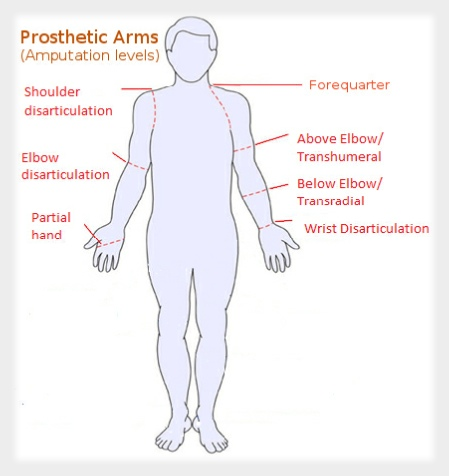 Body Powered Prosthesis a Body Powered Prosthesis Uses
